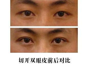 韩式双眼皮,埋线法和切口法